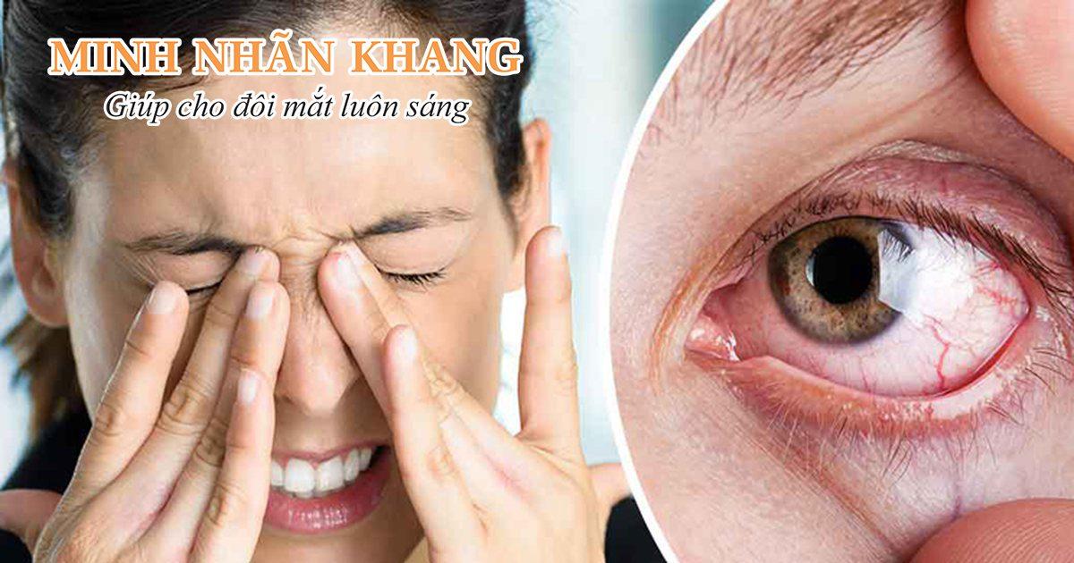 Hội chứng khô mắt thường gây nhiều cảm giác khó chịu cho người bệnh